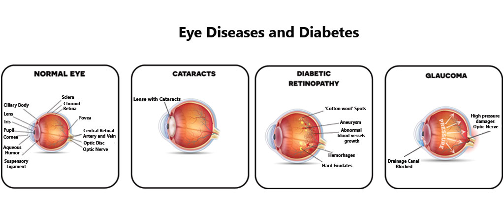 can-i-have-glaucoma-from-diabetes