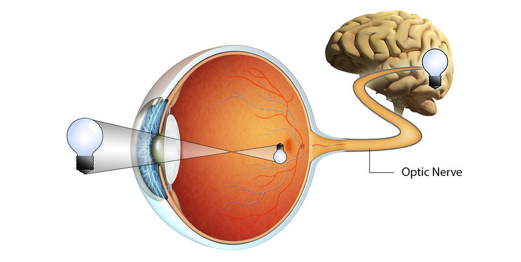 retina-optic-nerve-damage-brain