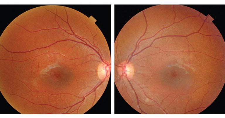 stargardt-disease-degenerative-eye-disease