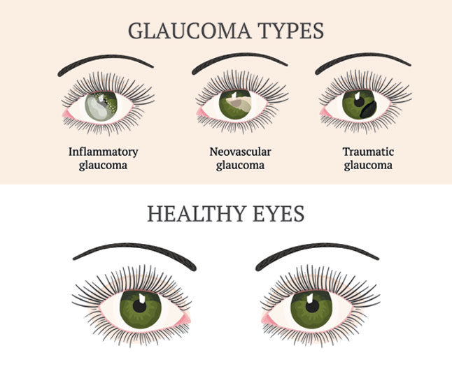 types-of-glaucoma