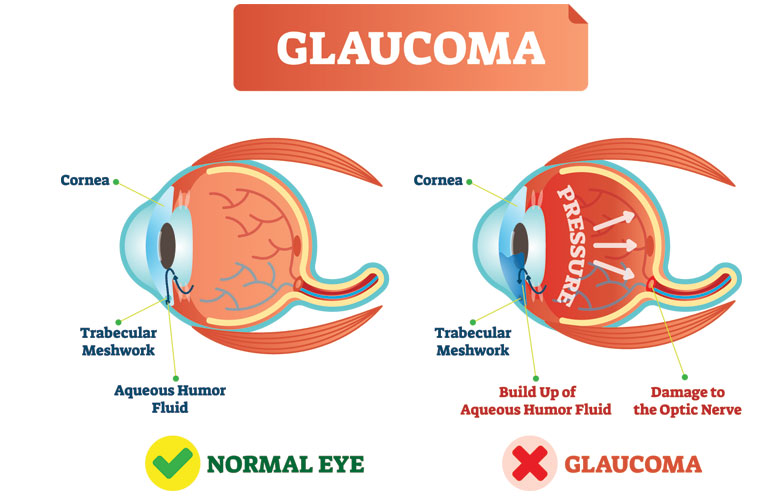 what-is-glaucoma-faqs-glaucoma