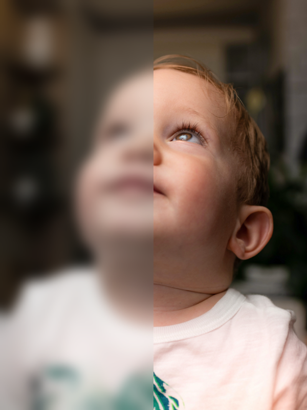 Blurred Vision caused by optic nerve damage