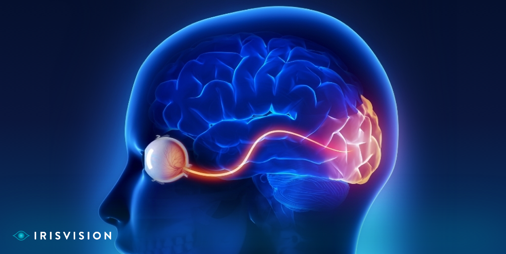 Mitigating the Effects of Optic Nerve Damage and other Eye Conditions?