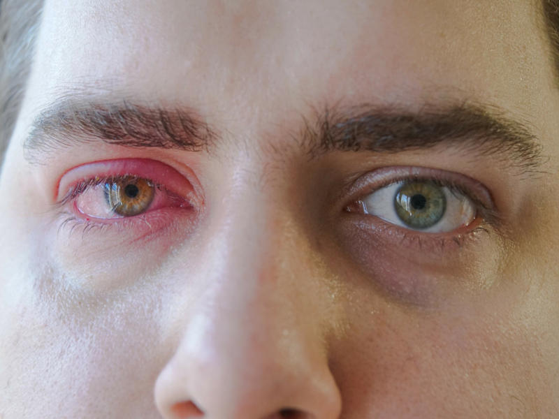 swollen eyes and redness caused by an eye injury